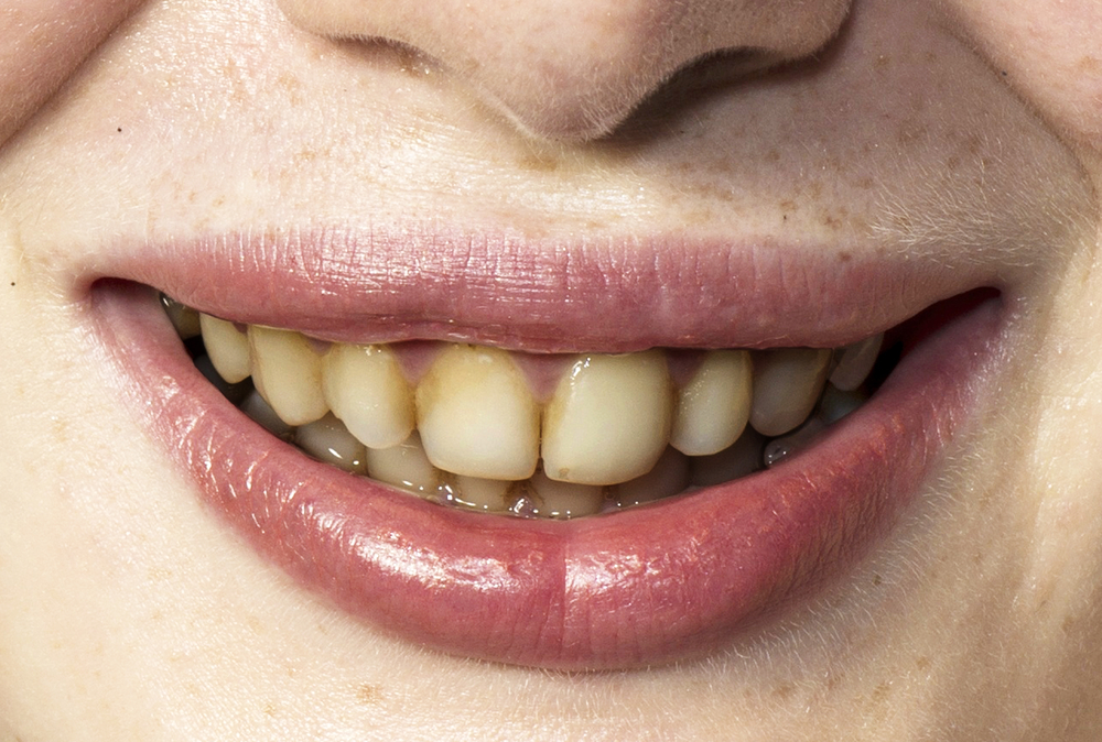 Yellow Tongue Causes And Treatment - WOW Remedies